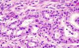 """Science子刊:两种生物标志物联合使用,有助于早期发现""""癌症之王"""""""