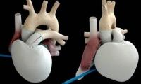 行业 | 全人工心脏:无数失败中的艰难求索,机械心能否替代生物心?
