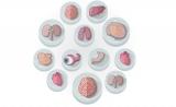 NAT MED:移植人造胆管,治疗肝脏疾病