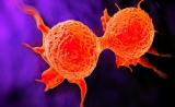 科学家提倡乳腺癌单细胞诊断