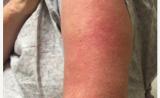 新研究 罕见皮肌炎治疗的好办法