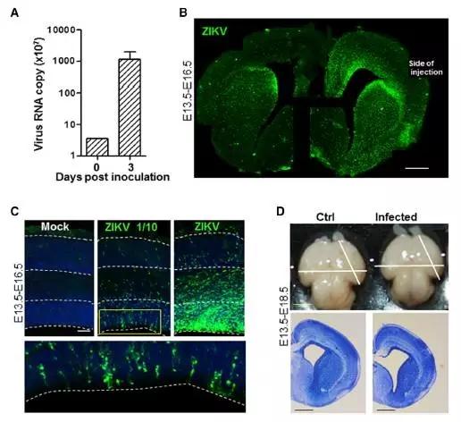 KV在小鼠胚胎脑组织高效的复制引起小头畸形-寨卡病毒是小头畸形