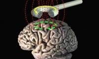 强迫症怎么治?深部经颅磁刺激管用