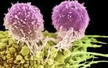 警惕!科学家证实第三种可以传染的癌症