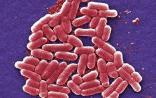 """美国现首例""""超级细菌"""" 全球无任何抗生素可治"""