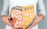 疾病咨询:年轻结直肠癌患者的遗传特性