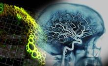 日本利用诱导多能干细胞再现无脑回畸形形成过程