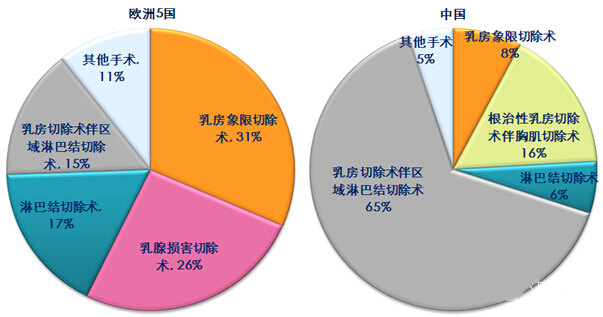 乳腺癌手术治疗类型:欧洲5国v.s.中国