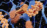 Nature:阿兹海默症的罪魁祸首竟然是感染?