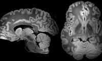 强大MRI技术持续扫描100小时,迄今最详细人脑图像出炉