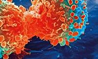还在熬夜吗?科学家发现昼夜节律紊乱,将损害免疫反应,加快癌细胞增殖!