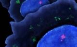 解开部分谜团!Nature:癌症转移究竟如何发生?
