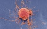 """有争议?Nature评论文章:反思""""间充质干细胞""""这一概念"""