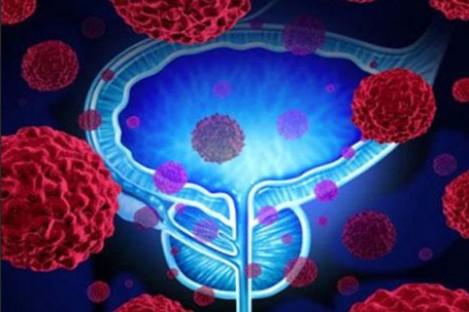 查出早期前列腺癌,切还是不切?