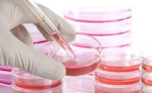 """新技术体外培养""""微型肿瘤""""用于药物筛查"""