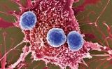 """一盆""""冷水""""引发深思!Science:新型癌症免疫疗法遭遇""""重大挫折"""""""