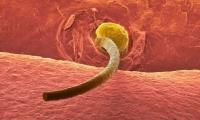 青春痘爆发?可能是你的基因突变了