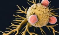 "Nature:新型免疫細胞""動員""T細胞,更有效抗擊""癌癥之王""胰腺癌"
