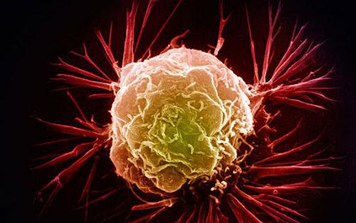 【盘点】2015年癌症检测前沿技术Top10