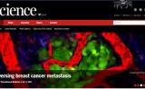 颠覆常识!化疗反而增加了乳腺癌转移风险