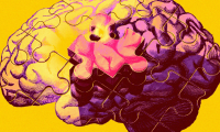 """""""绕开""""致病蛋白!预防老年痴呆症的基因疗法试验即将启动"""