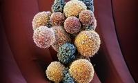 """阻止""""癌转移""""!Cell最新研究找到新对策"""
