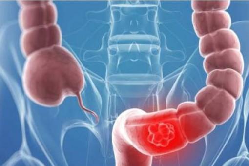 研究表明基因缺失可能会引发结直肠癌