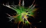 缩短至2周!新方法可快速利用干细胞培养脑细胞