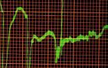 NEJM:年轻人心脏性猝死与基因有关