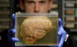 用皮肤培养一个大脑,你就能获得永生?