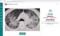 新冠肺炎辅助诊断人工智能模型成功建立,总准确度可达83%