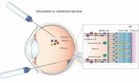 Nature子刊:基因疗法有望让失明者重见光明