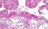 Nature子刊:人工智能可预测卵巢癌患者生存率和治疗反应
