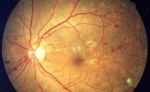 日研究人员用人类胚胎干细胞培育出立体视网膜组织