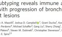 强生最新研究:肺癌与免疫系统还有这层关系?