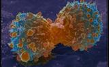 李峻岭教授:延长生存期!肿瘤免疫治疗为晚期肺癌患者带来新选择