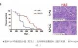 研究发现 大麻二酚和吉西他滨联合治疗可延长胰腺癌生存期