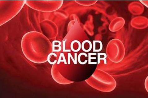 注意:白血病、淋巴瘤等血癌的早期症状有这些,快看看你有没有