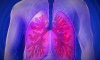 "Science子刊:""不是癌症的癌症""有救了!科学家发现肺纤维化潜在治疗靶标"