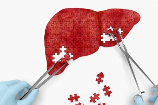 早期肝癌怎么检测?科学家又有新发现