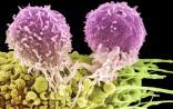 CAR-T细胞疗法在实体肿瘤治疗中的五大难点