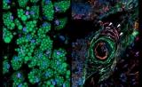 意外!Nature首揭:调控脂肪生成的关键细胞