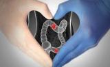 年輕人做完結直腸癌手術后要注意哪些問題