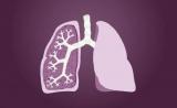 肺癌市场三国杀:凯美纳年销售破十亿
