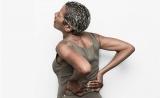 慢性背痛干细胞治疗可减少阿片类药物需求