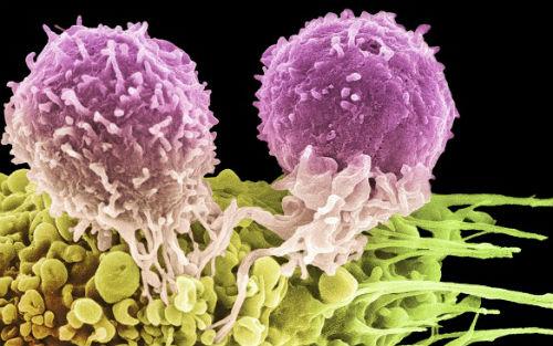 里程碑!世界首次人类癌症病毒免疫治疗大获成功