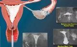 NEJM:40%的不孕女性或不用做试管婴儿,已经100岁的子宫输卵管造影术也可解决问题
