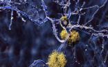 PNAS:基因疗法新突破,阻止小鼠老年痴呆