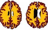 中年肥胖,大脑衰老加速10年