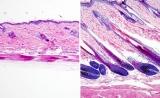 Nat Cell Biol:乳酸可以刺激干细胞,让毛发再生!
